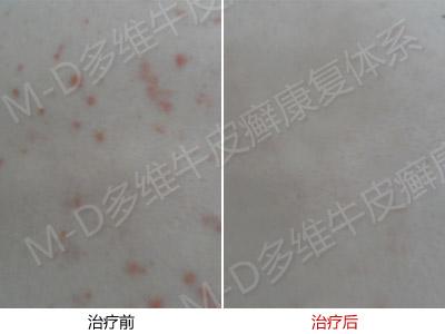 武汉病例2.jpg