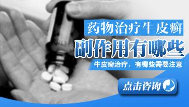 牛皮癣患者用药有哪些注意事项
