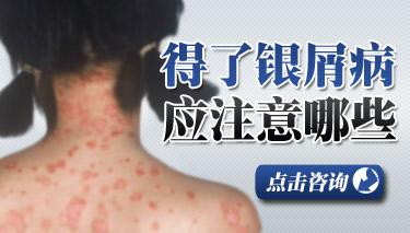 脸部牛皮癣患者能化妆吗